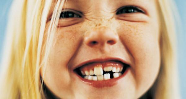 Come spazzolare i denti da latte? Ecco Baby Smile, lo spazzolino di tau-marin