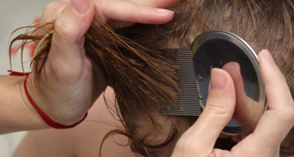 Pidocchi nei capelli: rimedi per debellarli definitivamente