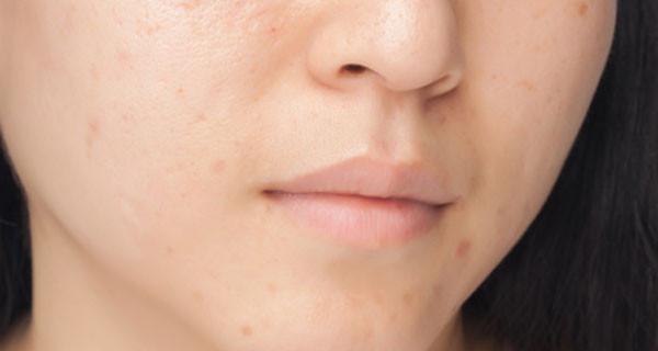 Come combattere l'acne nei giovani? Consigli degli esperti